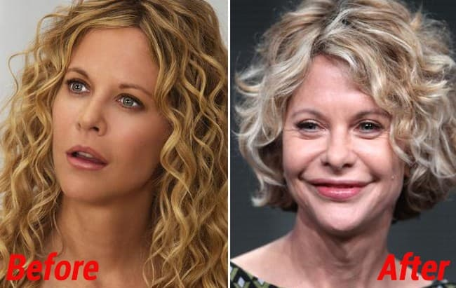 Before And After Photos Of Meg Ryan And Plastic Surgery 1