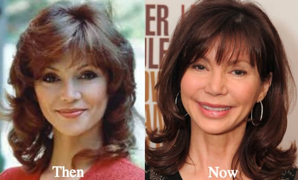 Hollywood Stars Before And After Plastic Surgery Photos 1