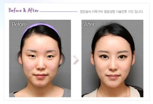 Korean Plastic Surgery Before After On African American 1