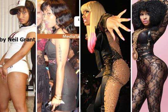 Plastic Surgery For Buttocks Before And After Is Called 1