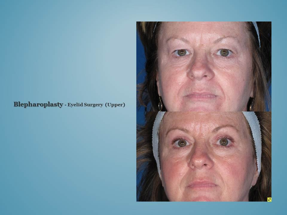 Wilmington Plastic Surgery Specialists Before And After 1