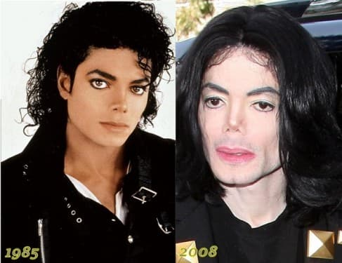 Michael Jackson Before He Got Plastic Surgery And After 1