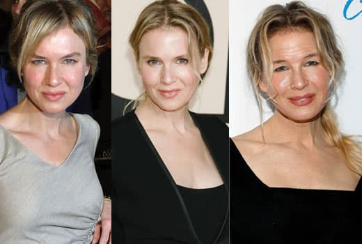 Renee Zellweger Images Before And After Plastic Surgery 1