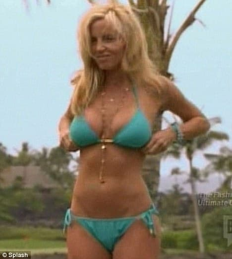 Real Housewives Of Beverly Hills Before Plastic Surgery 1
