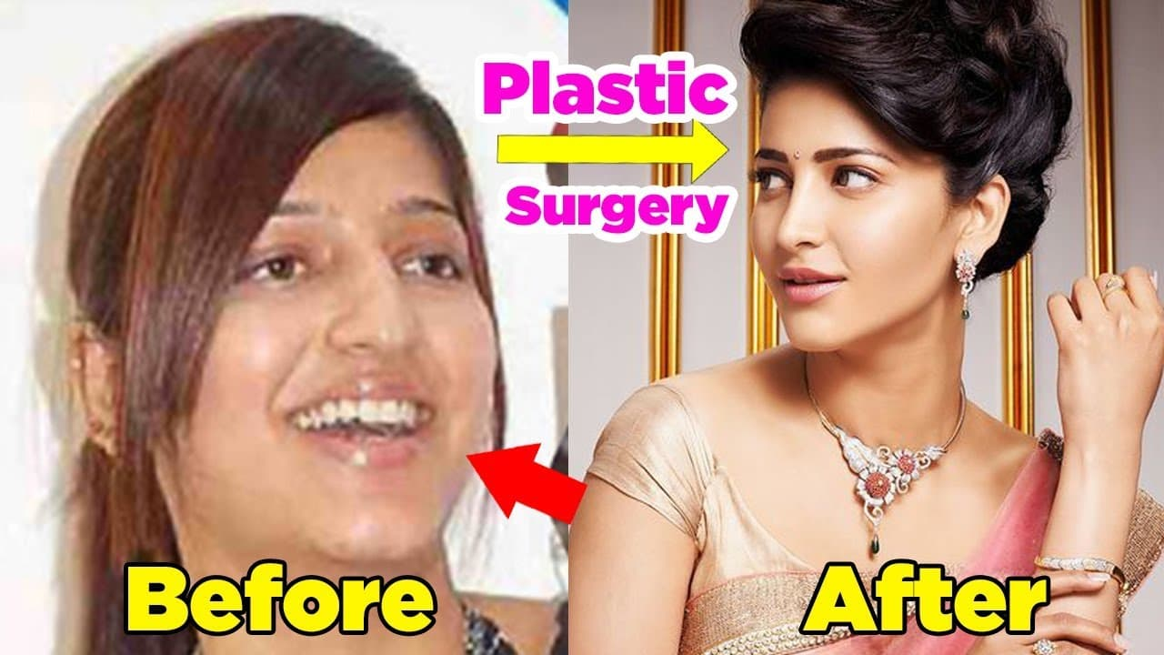 South Indian Actresses Before And After Plastic Surgery 1