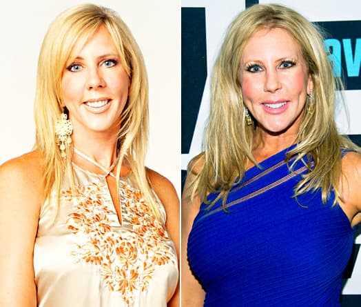 Housewives Of Orange County Plastic Surgery Before And After photo - 1