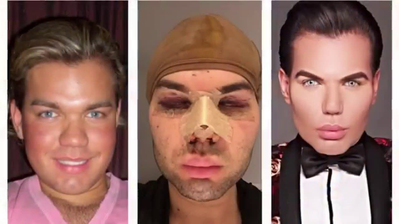 What Did The Human Ken Doll Look Like Before Plastic Surgery photo - 1