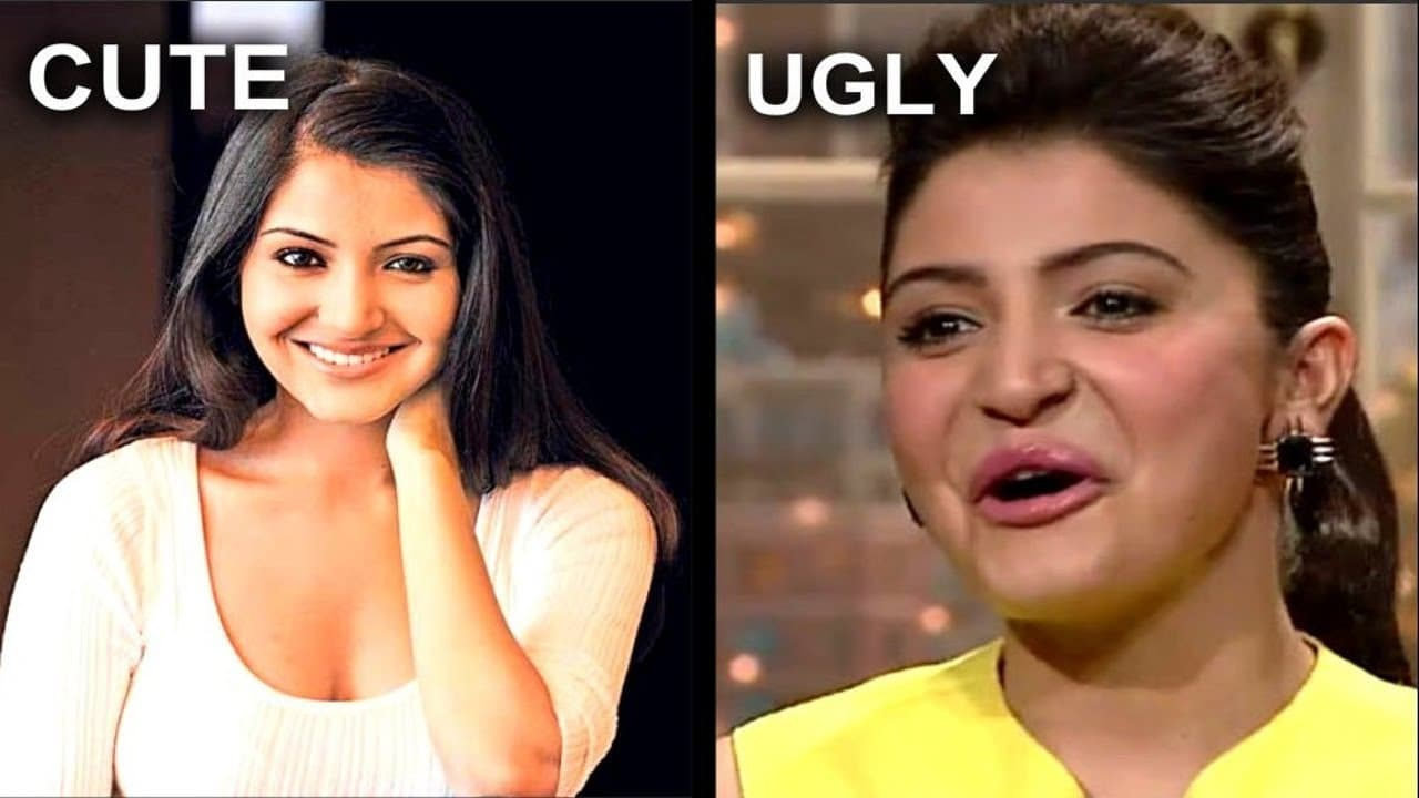 Anushka Sharma Before And After Plastic Surgery Pictures 1