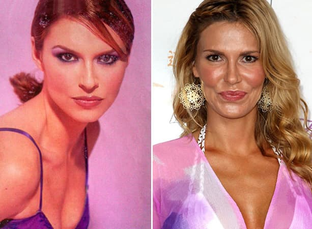 Brandi Glanville Plastic Surgery Before And After Photos 1