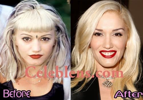Gwen Stefani Comparison Plastic Surgery Before And After 1