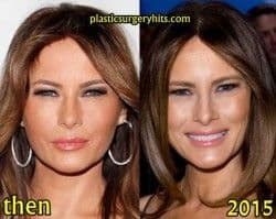 Did Tiffany Have Plastic Surgery Before The Inauguration 1