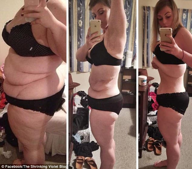 Plastic Surgery For Extreme Weight Loss Before And After 1