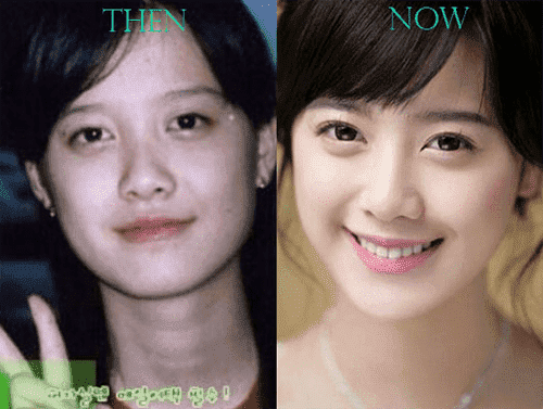 Famous Korean Actresses Before And After Plastic Surgery 1