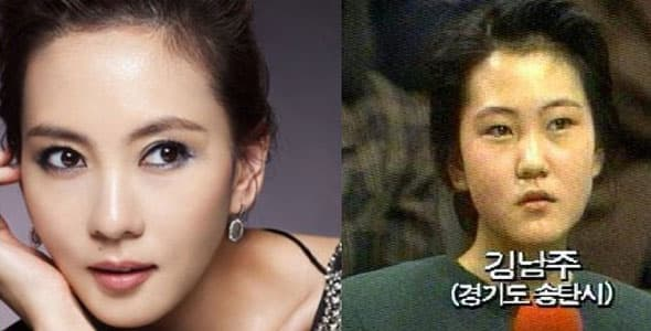 Korean Actresses Before And After Plastic Surgery Photos 1