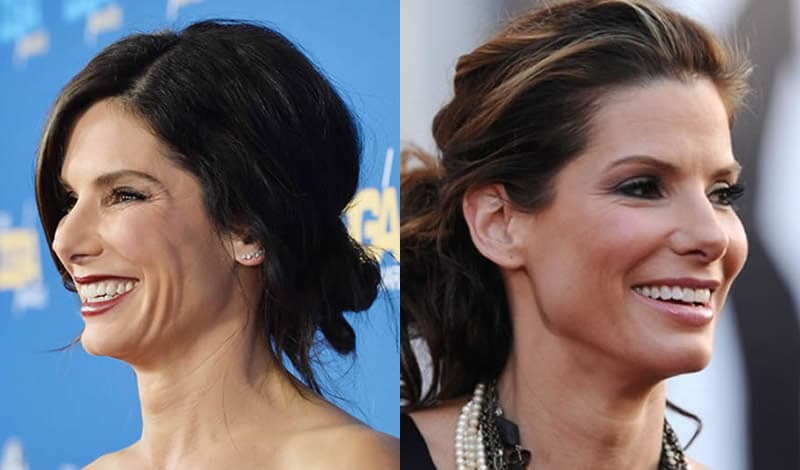 Sandra Bullock Plastic Surgery Before And After Pictures 1