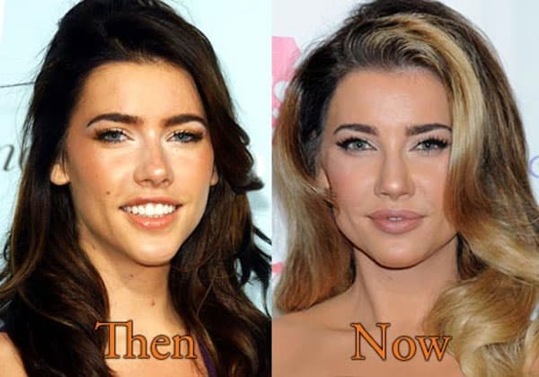 Jacqueline Macinnes Wood Before And After Plastic Surgery 1