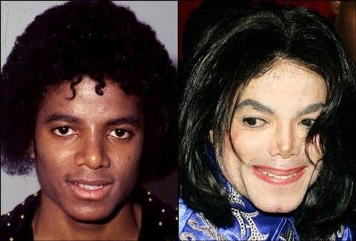 50 Images Of Celebrities Before And After Plastic Surgery 1