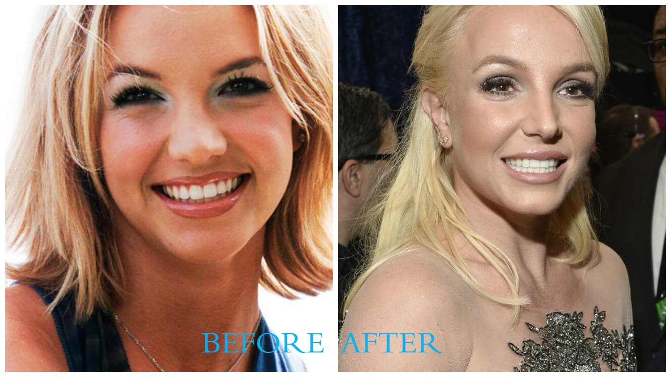 Britney Spears Plastic Surgery Before And After Pictures 1