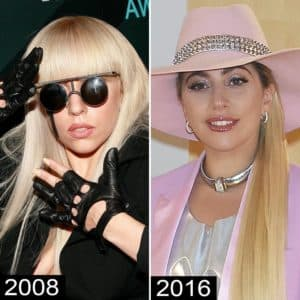 Lady Gaga Before And After Plastic Surgery Photos 1