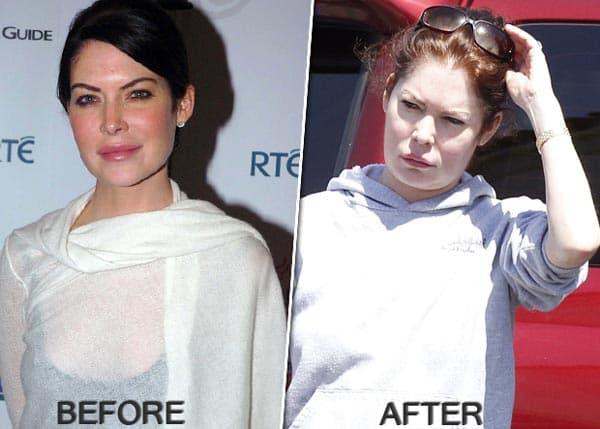 Lara Flynn Boyle Before After Pictures Of Plastic Surgery 1
