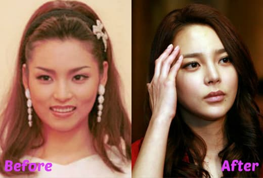 South Korean Celebrities Before And After Plastic Surgery 1
