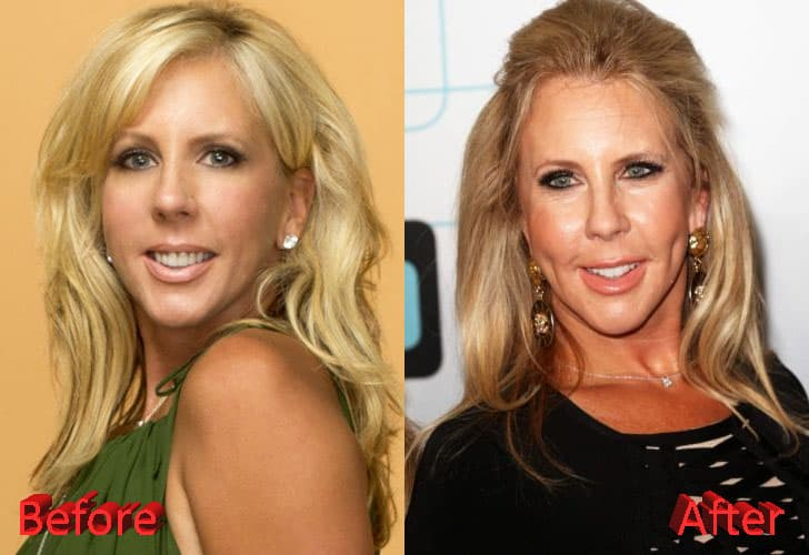 Vicki Gunvalson Nose Job Before And After Plastic Surgery 1