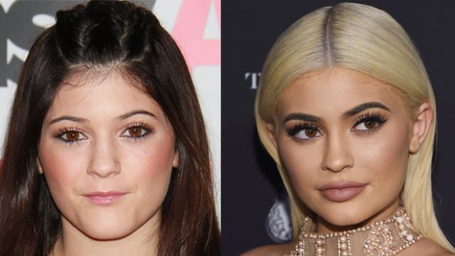 Before And After Heavy Girl To Thin After Plastic Surgery 1