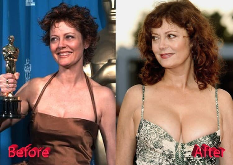 Before And After Plastic Surgery Breast Augmentation Bare 1