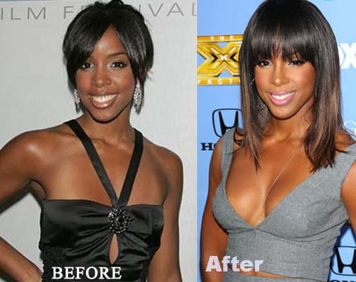 Black Celebrities Before And After Plastic Surgery Photos 1