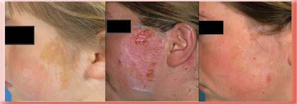 Plastic Surgery For Acanthosis Nigricans Before And After 1
