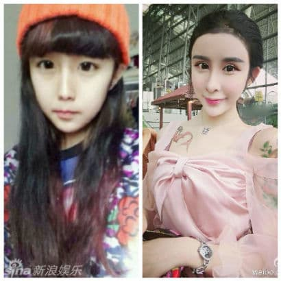 15 Year Old Chinese Girl Plastic Surgery Before And After 1
