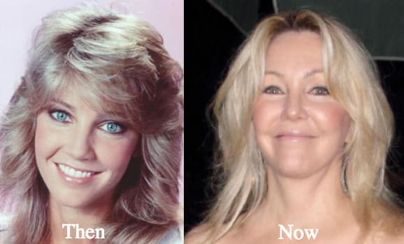 Heather Locklear Before And Afterr Plastic Surgery Photos 1