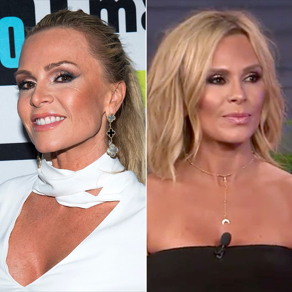 Real Housewives Orange County Plastic Surgery Before And After photo - 1