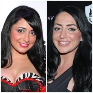 Jersey Shore Cast Plastic Surgery Before And After 1