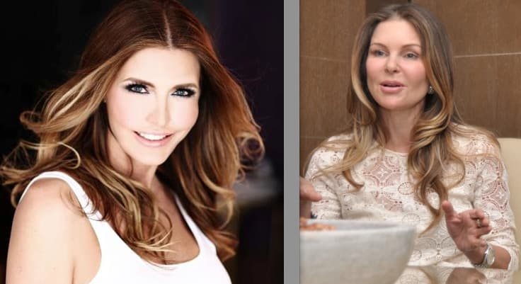 Real Housewives Of Vancouver Ronnie Before Plastic Surgery 1