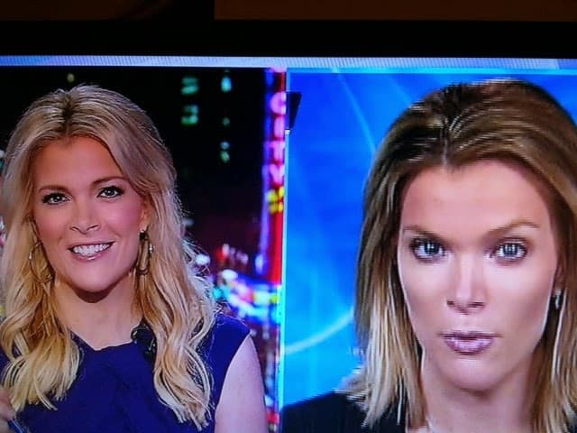 Ainsley Earhardt Plastic Surgery Before And After Pictures 1