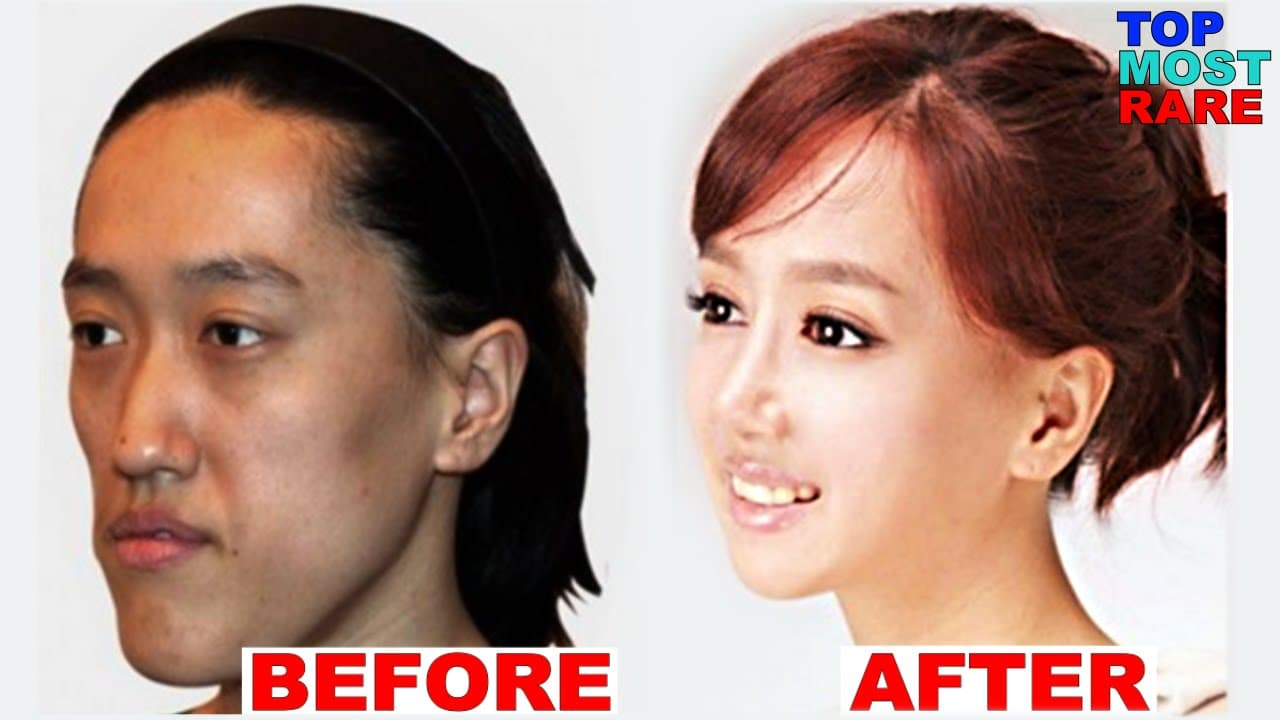 Actress Korean Girls With Plastic Surgery Before And After 1