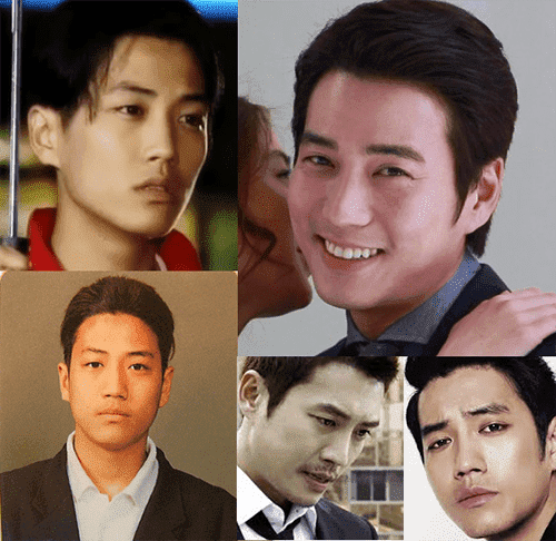 Famous Korean Celebrities Before And After Plastic Surgery 1