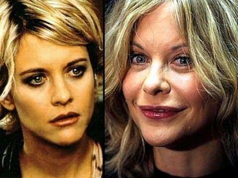 Meg Ryan And Before And After Pictures With Plastic Surgery 1