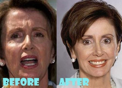 Nancy Pelosi Breast Plastic Surgery Before And After Photos 1