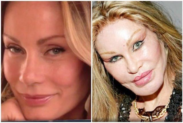 What Jocelyn Wildenstein Looked Like Before Plastic Surgery 1