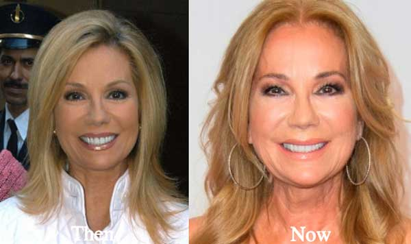 Kathy Lee Gifford Before And After Plastic Surgery Pictures 1