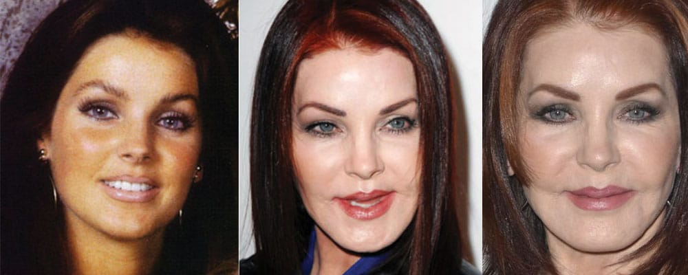 Priscilla Presley Plastic Surgery Before And After Pictures 1