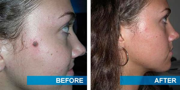 Plastic Surgery Facial Mole Removal Before And After Photos 1