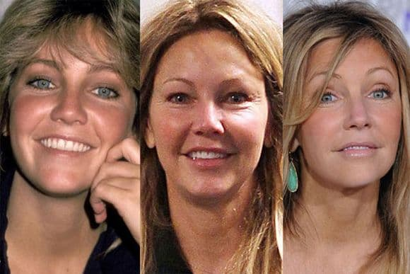Viral Scoop 50 Celebrities Before And After Plastic Surgery 1