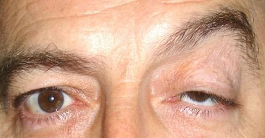Drooping Of Upper Eyelid And Brow Plastic Surgery Before And After photo - 1