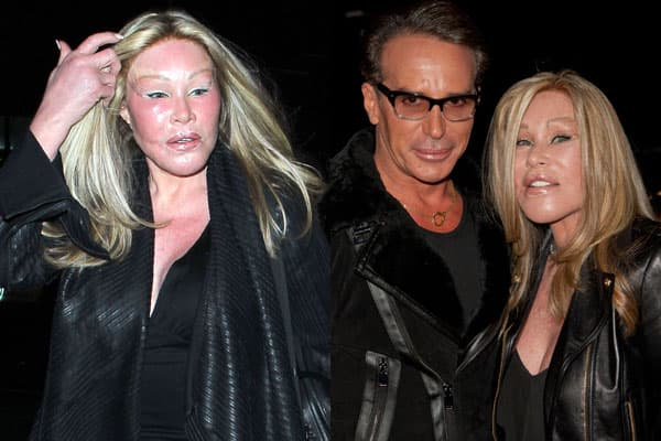 What Did Jocelyn Wildenstein Look Like Before She Started Plastic Surgery photo - 1