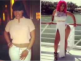 jessica dime before surgery