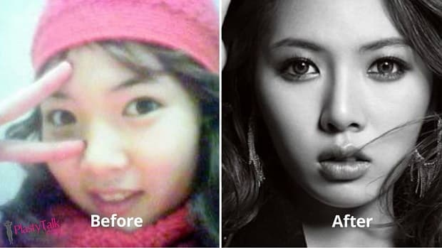 4Minute Before Plastic Surgery photo - 1