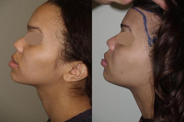 Mtf Plastic Surgery Before And After photo - 1